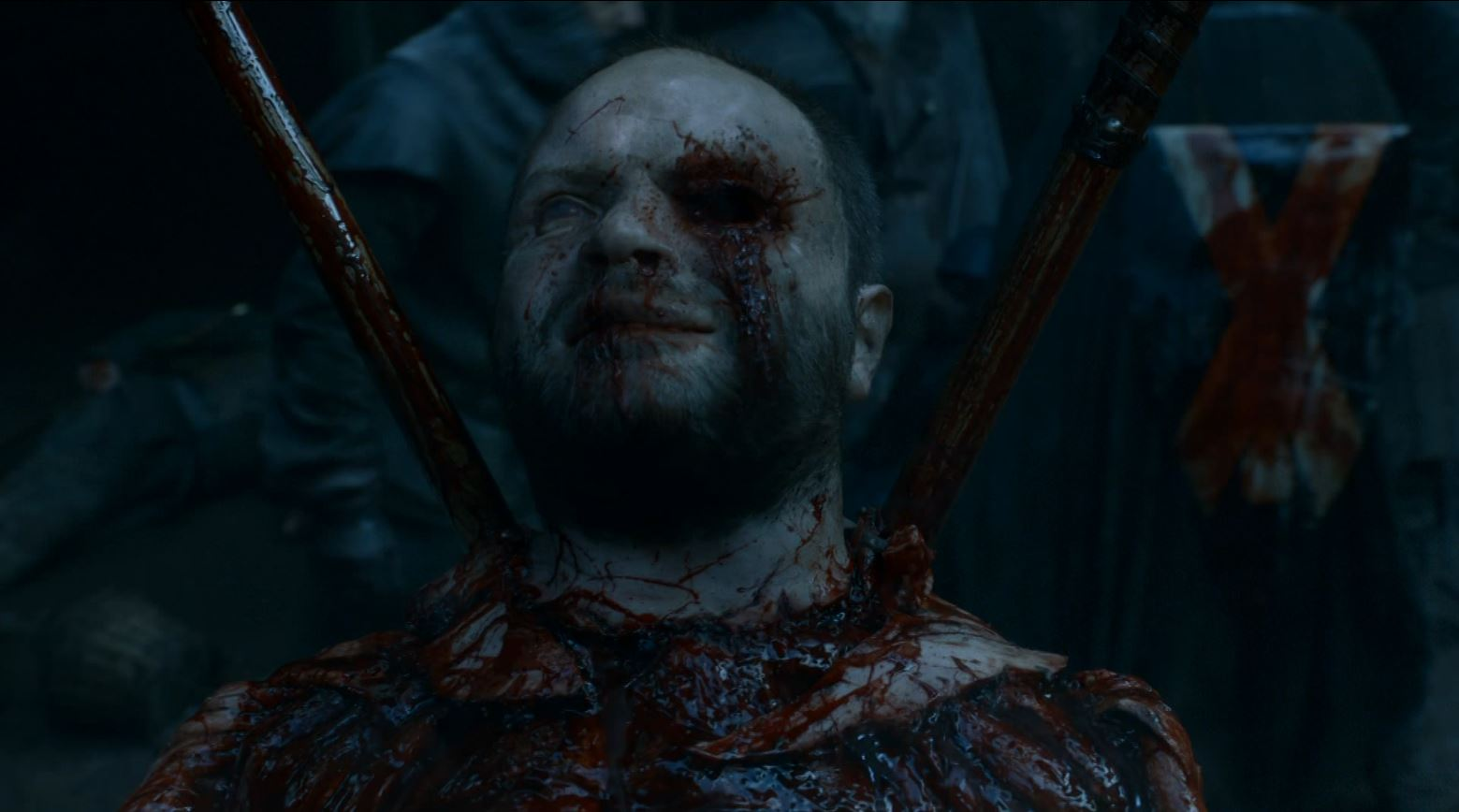 Game of Thrones 'The Mountain and The Viper' Review http://scifiempire.net Game Of Thrones - Flayed Ironborn by Bolton