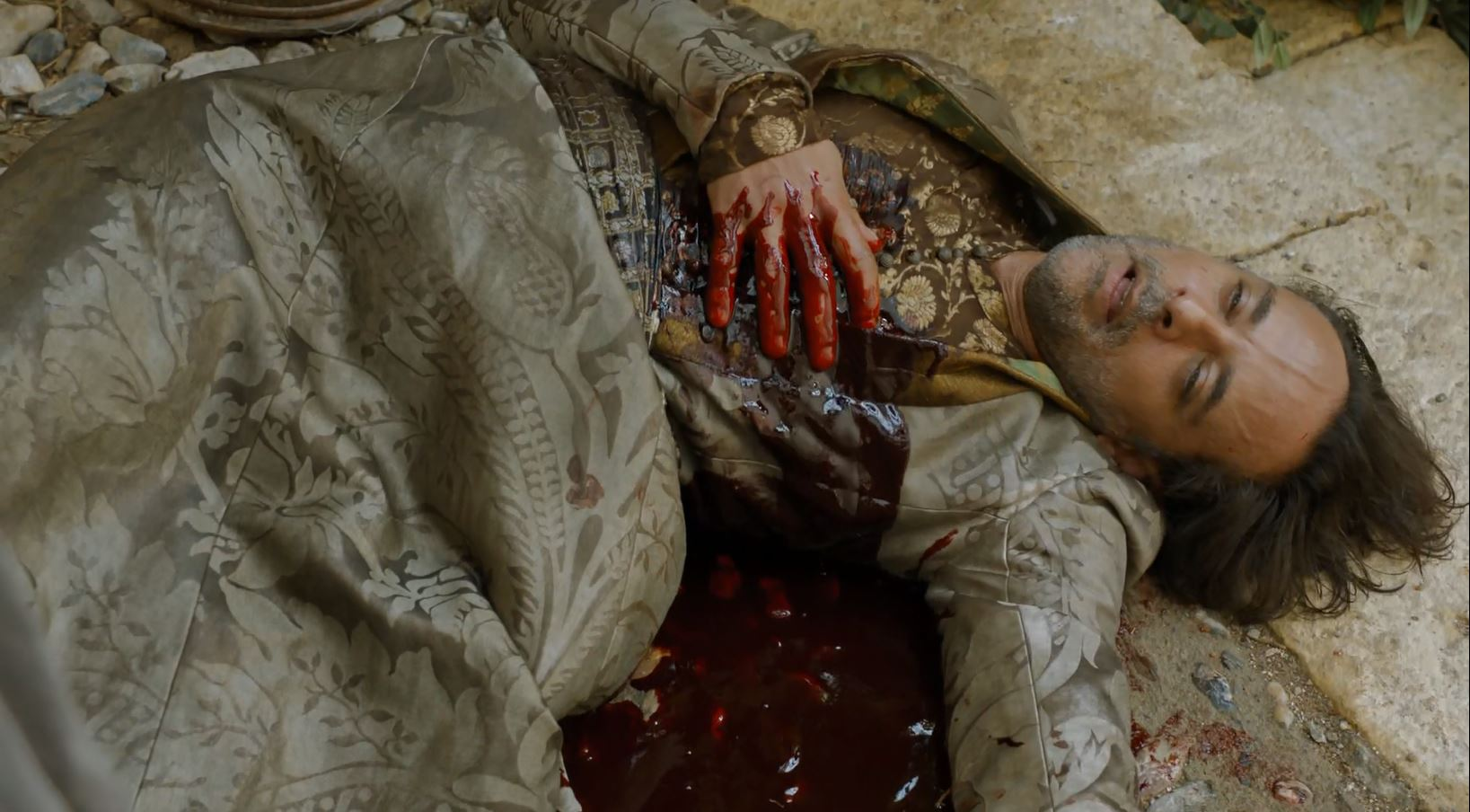 Doran bleeding to death (Alexander Siddig). Game Of Thrones S6Ep1 The Red Woman Review