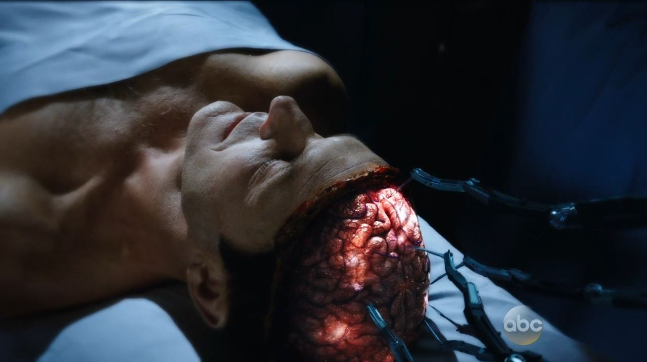 Agents of SHIELD - Coulson being resurrected